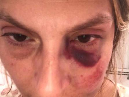 Tortora, messaggi di solidarietà per la donna aggredita in strada