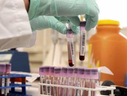 Covid, la Regione Calabria aderisce al progetto europeo per la raccolta del plasma