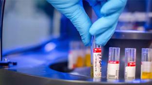 Coronavirus, 426 casi positivi. Il bollettino del 28 novembre
