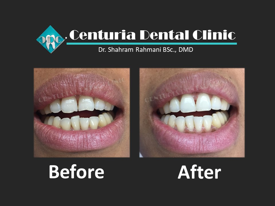 Before-After for Dental-2