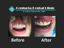 Before-After for Dental-9