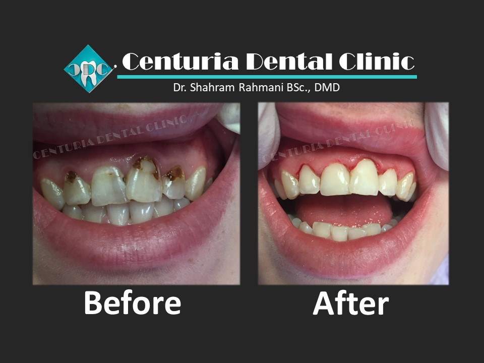 Before-After for Dental-1