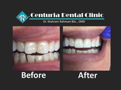 Before-After for Dental-5