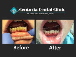 Before-After for Dental-8
