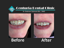 Before-After for Dental-12