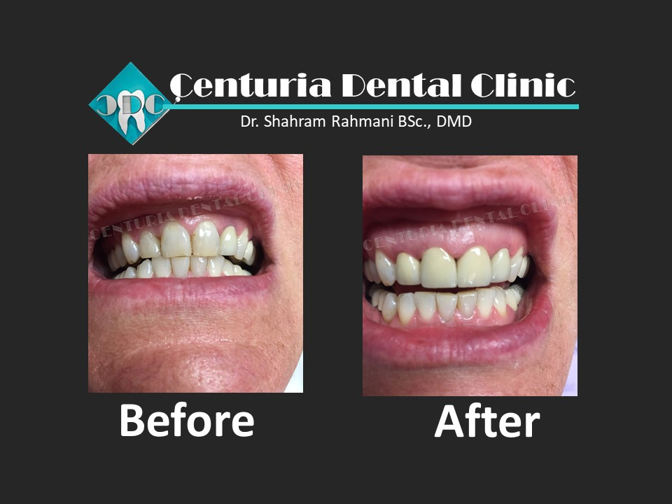 Before-After for Dental-10