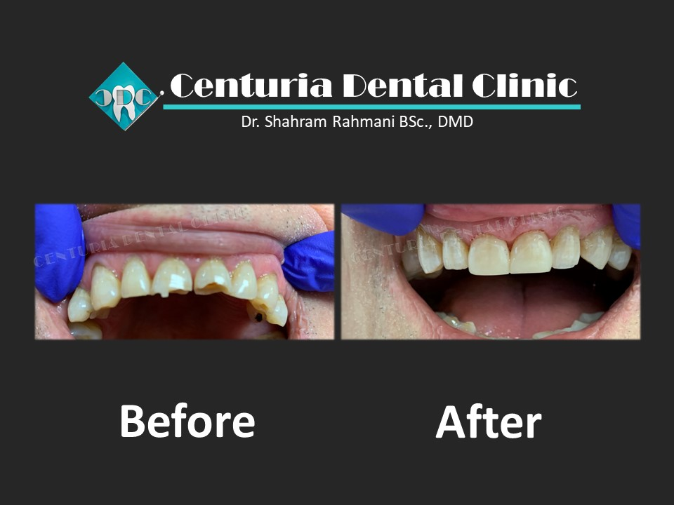 Before-After for Dental-4