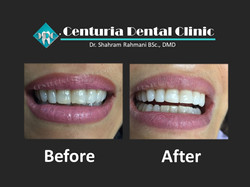 Before-After for Dental-7