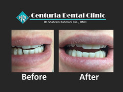 Before-After for Dental-6