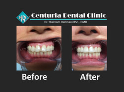 Before-After for Dental-13