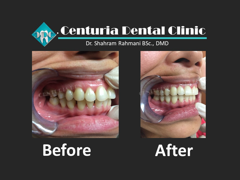 Before-After for Dental-14