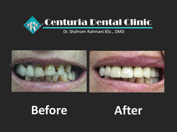 Before-After for Dental-3