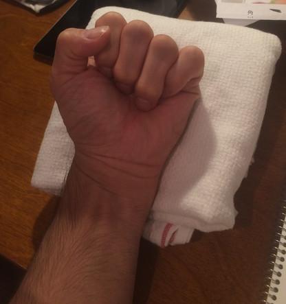 自分の腕のデッサン