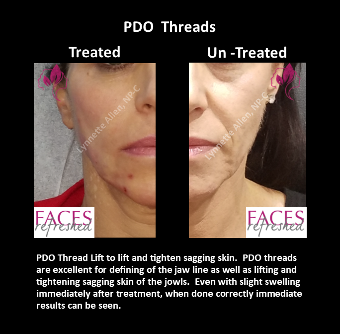 PDO Threads_Before_After_Split_b
