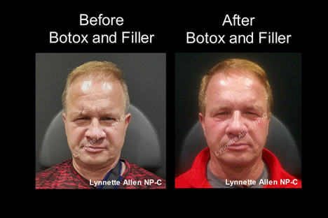 Male Botox and filler before and after