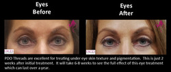PDO-Thread Eyes Before and After