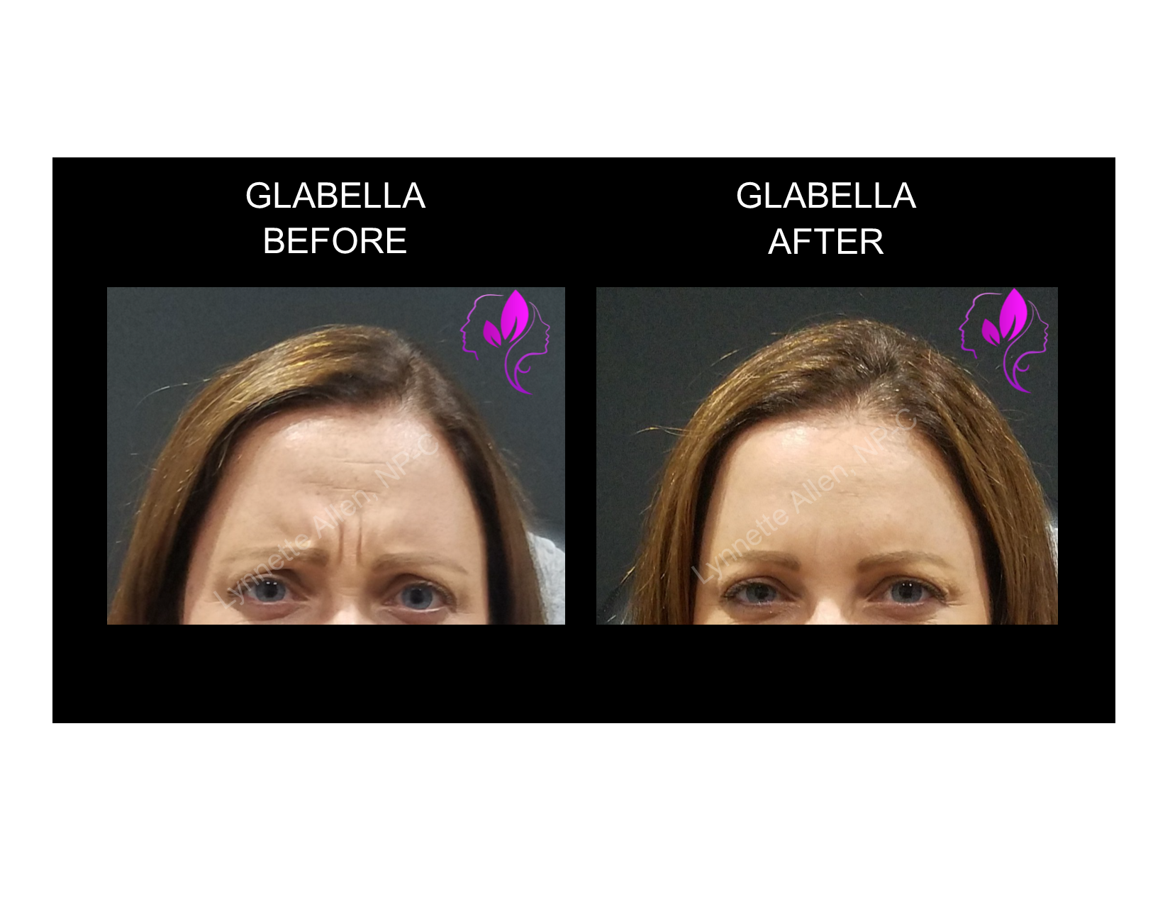 Content-Glabella_Before_After_03