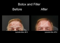 Botox in the Forehead for Men