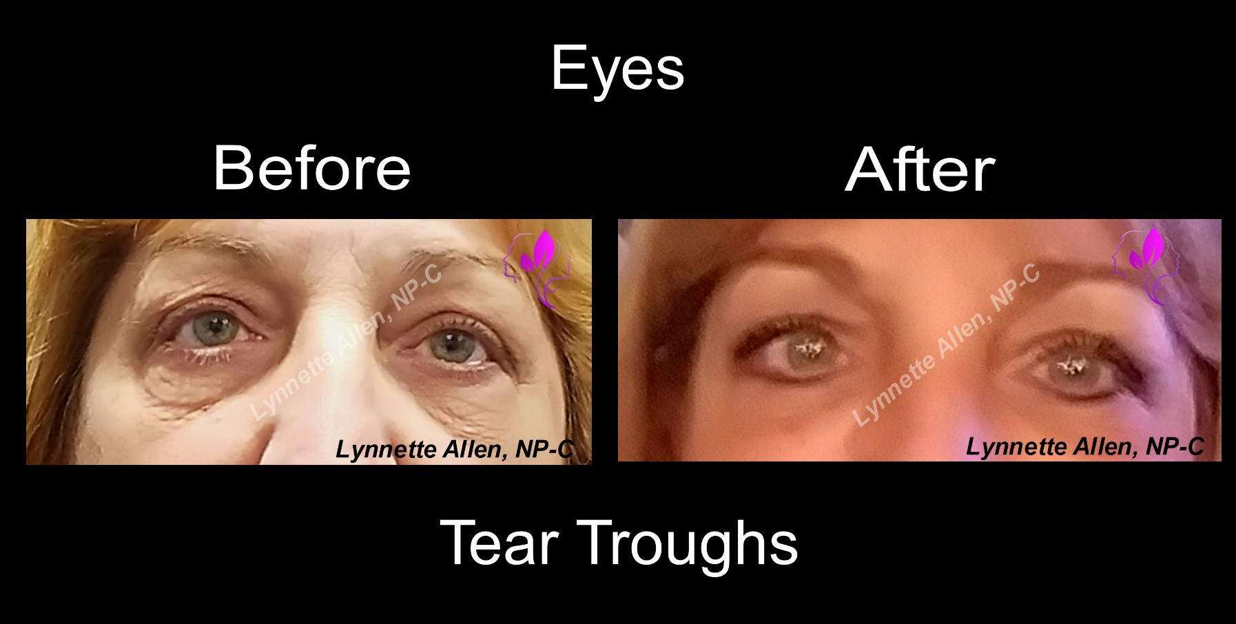 Eyes and Tears Troughs Before and Af