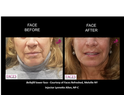 AA_Before_After_Lower Face1