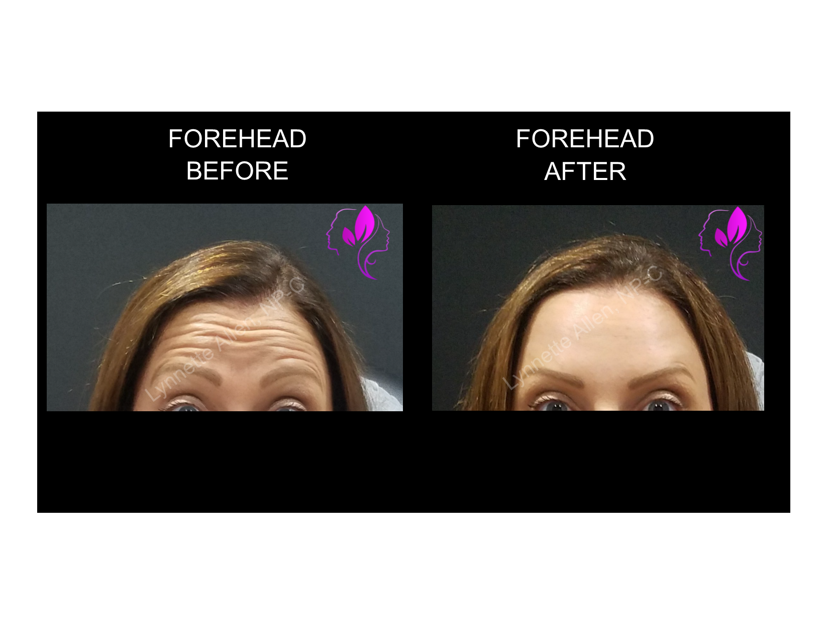 Content-Glabella_Before_After_04