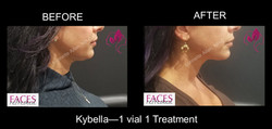 Kybella - Before & After