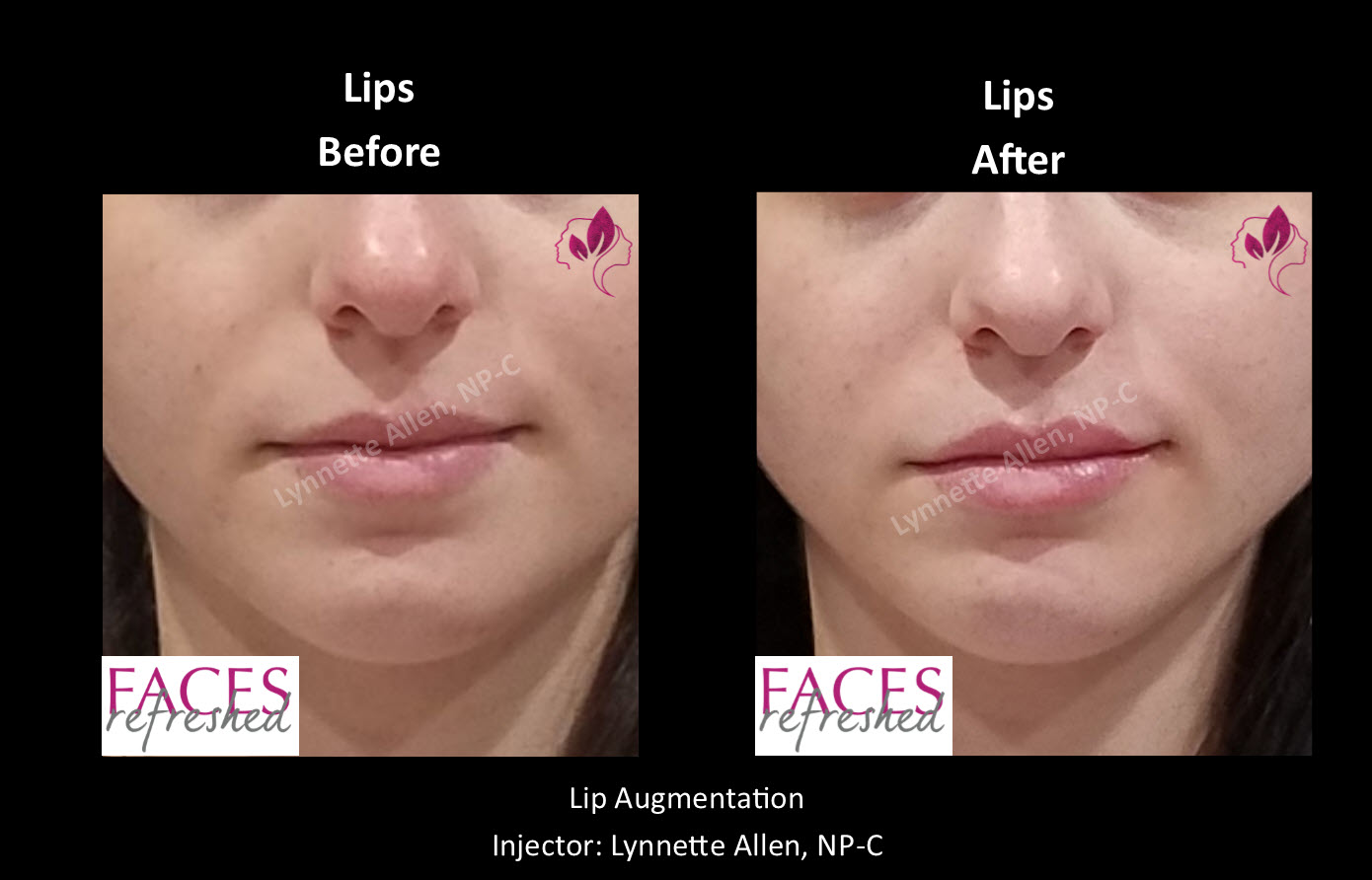 AS_Before_After_Lips1
