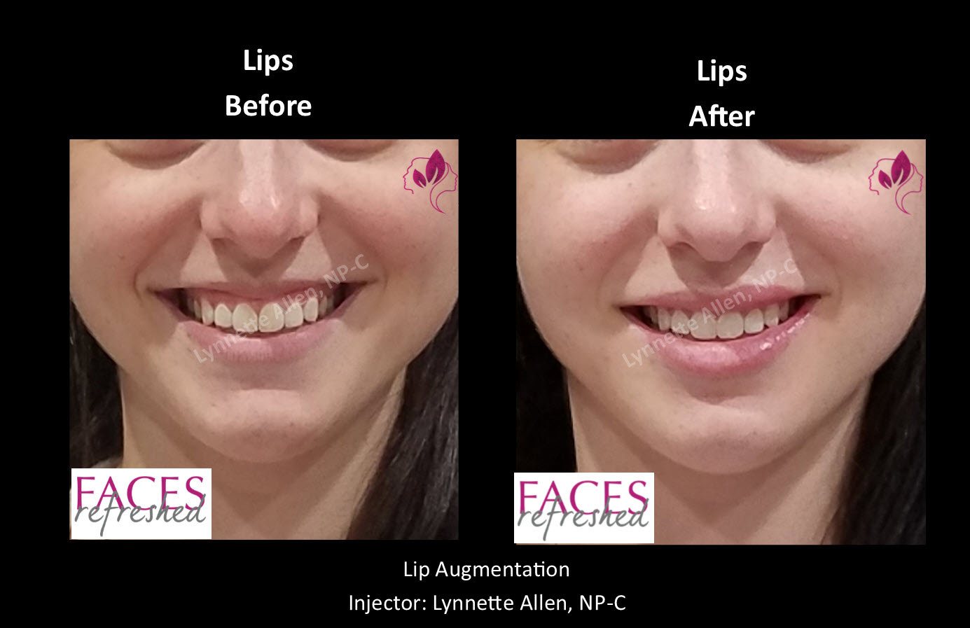 AS_Before_After_Lips1a