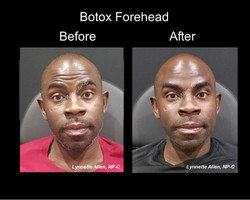 Botox-Forehead_Before_After_Full