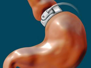 L'anneau gastrique virtuel, qu'est-ce que c'est ?