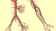 L'hypertension artérielle : le mal silencieux