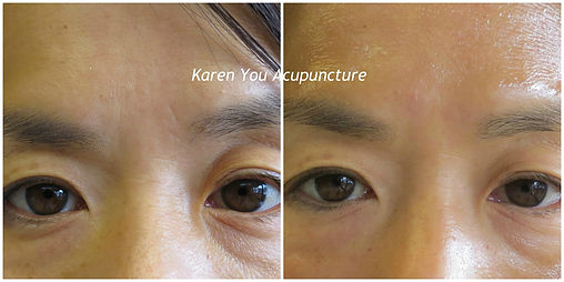 forehead watermark.jpg