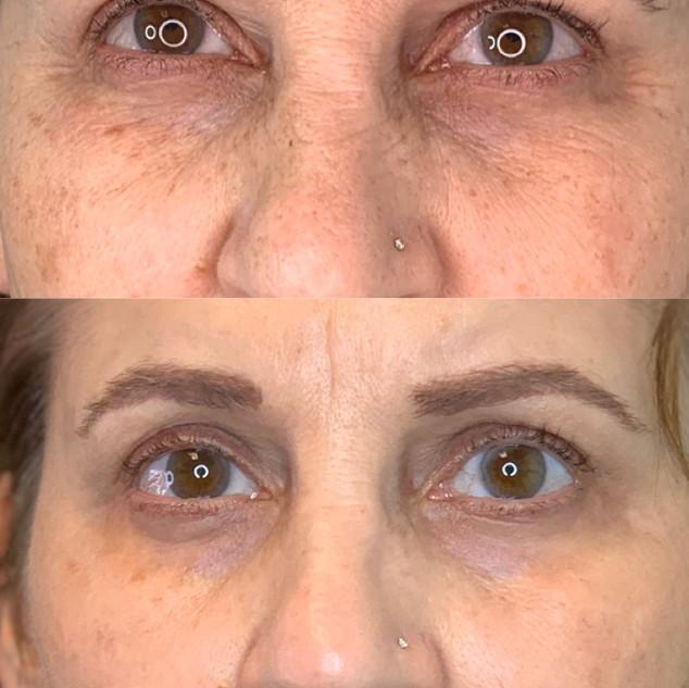 Plasma Upper and Lower Eyelid