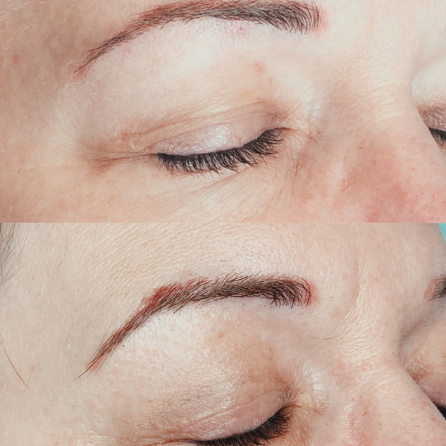 upper eyes before and after