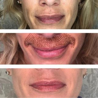 Plasma upper lip