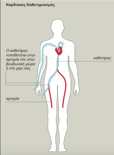 Καρδιακός Καθετηριασμός : Στεφανιαία Αγγ