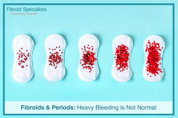 Fibroids & Periods: Heavy Bleeding is Not Normal