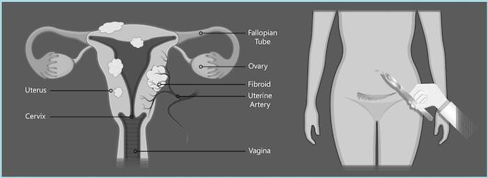 Diagram showing abdominal type of myomectomy