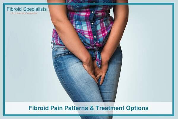 Fibroid Pain Patterns & Treatment Options