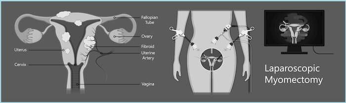 Diagram showing laparoscopic type of myomectomy