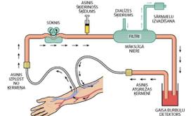 Kas ir hemodialīze?