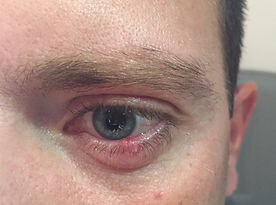 chalazion chirurgie ophtalmo cannes