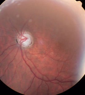 glaucome chirurgie ophtalmo cannes