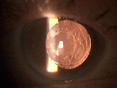 ophtalmo cannes cataracte secondaire laser