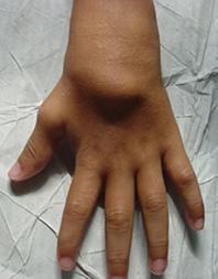 Blau Symptomn - boggy synovitis