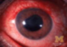 Blau Symptom - Anterior-uveitis