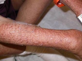 Blau Syndrome (BS) symptons