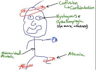 "Beyond the ""Classic"" Triad: Diagnosing and Managing Wernicke Encephalopathy"