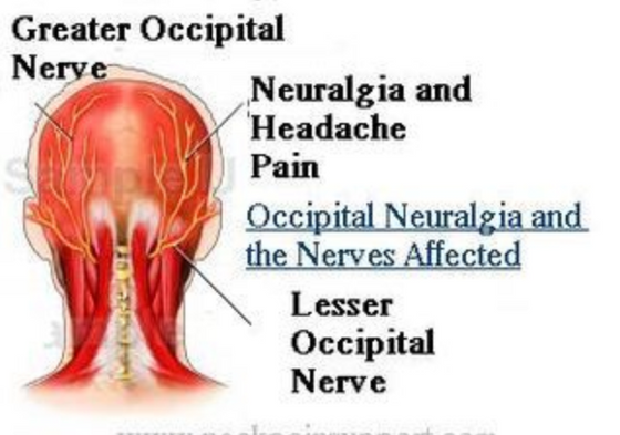 Use of Occipital Nerve Block in the Emergency Department