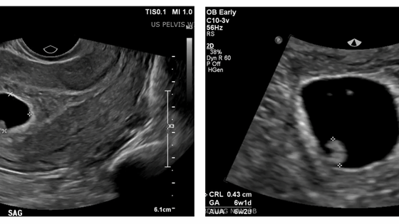 Medicine, Surgery, or Watch & Wait:  Management of Spontaneous Abortion in the First Trimester
